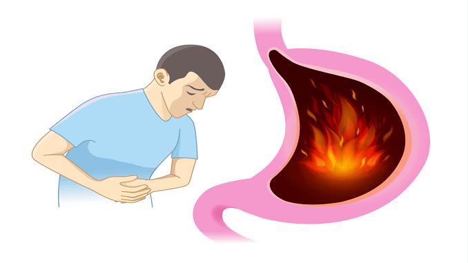 10 signs of gastroesophageal reflux disease