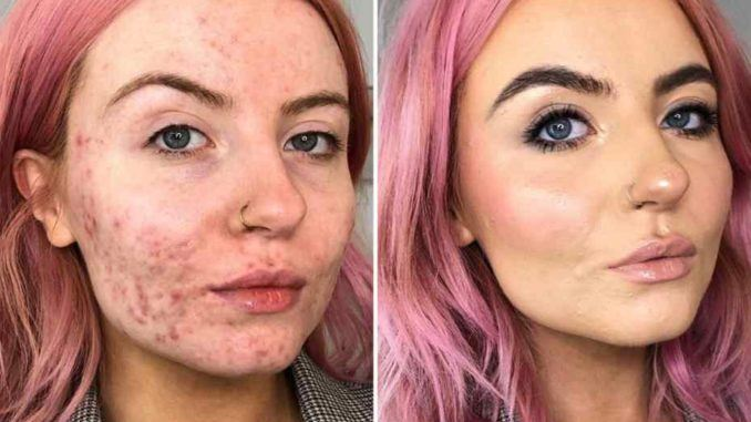 Before And After Makeup For Acne Skin Scoviral