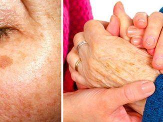 remove age spots