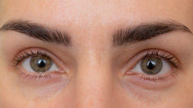 Lazy Eye Exercises