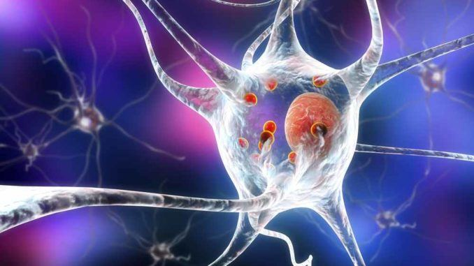 Parkinson's disease - causes, symptoms, treatment